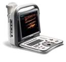 Sonoscape A6 Ultrasound Scanner
